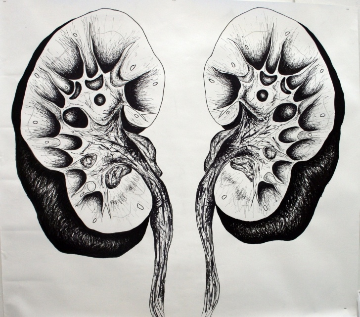 Good Kidney Pencil Drawing Easy Cut Open Kidney Drawing - Pen (3 Meters By 2 Meters) | Hello Kidney Photo